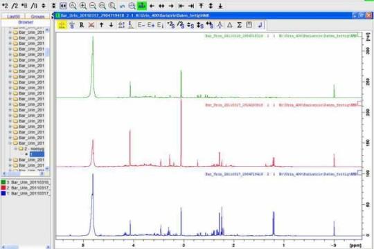 Stoffwechselprofile in einer Urinprobe mittels NMR